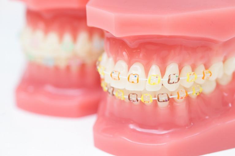 どうして矯正では歯が動くの?