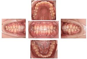 歯並びの写真撮影