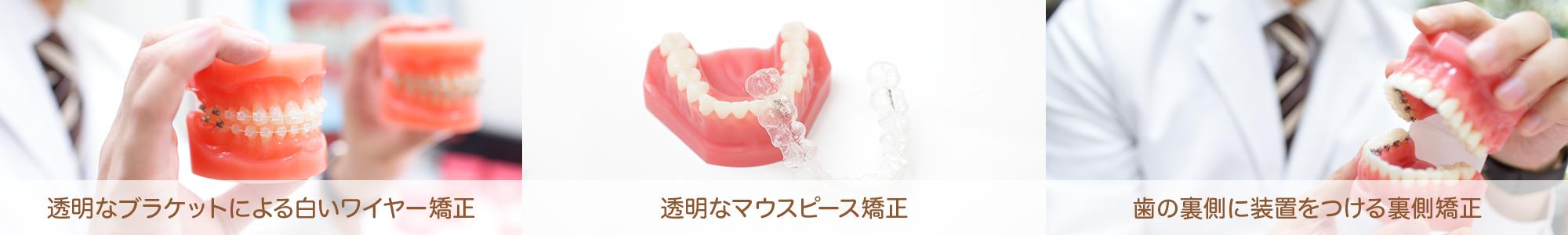 透明なブラケットによる白いワイヤー矯正 透明なマウスピース矯正 歯の裏側による裏側矯正